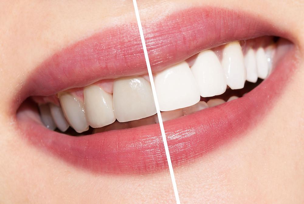 Teeth Whitening at Stauffer Family Dental