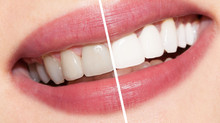 Dental Teeth-Whitening