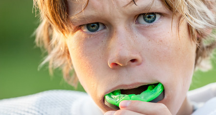 Free mouth guards for Our Existing and New Patients-Let us Help You Protect Your Teeth