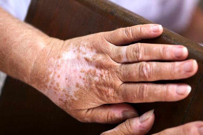 vitiligo_G_151046848.jpg