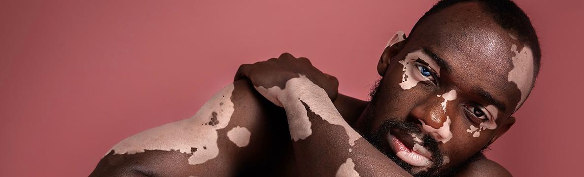 causes-of-vitiligo-1.png