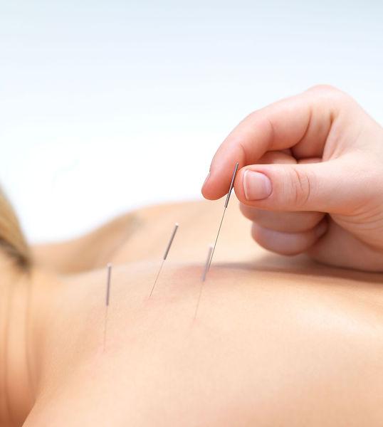 acu needles 1.jpg