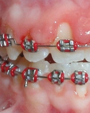more_swollen_gums_with_braces.jpg