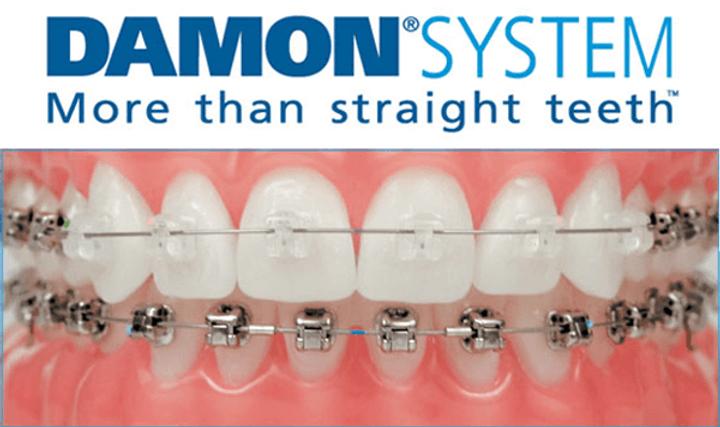 Damon-System-Braces.png