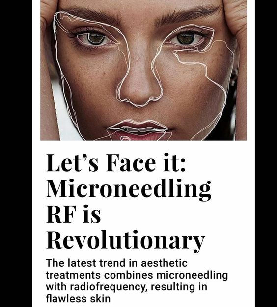 RF Micro-needling