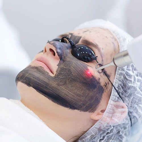 Hollywood Laser Carbon facial