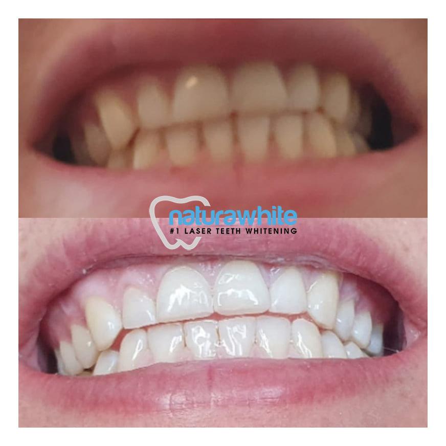 Cosmetic Teeth Whitening