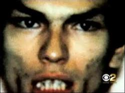 Ramirez teeth