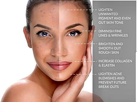 Chemical Peel Photo.jpg