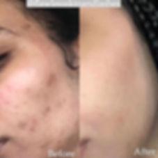 B+A Skin1.jpg