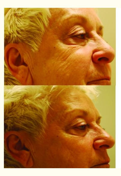 red light therapy, led light therapy, skincare, antiaging