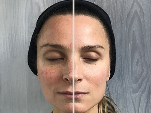 10 Facial Toning Sessions