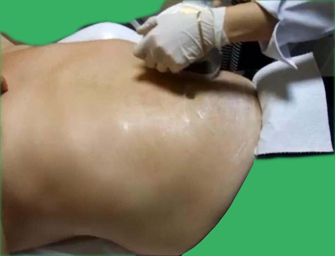 Мужской массаж для похудения