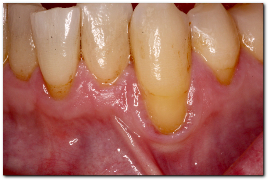 Major Advances to Reverse Gum Recession! | Toronto Periodontist ...