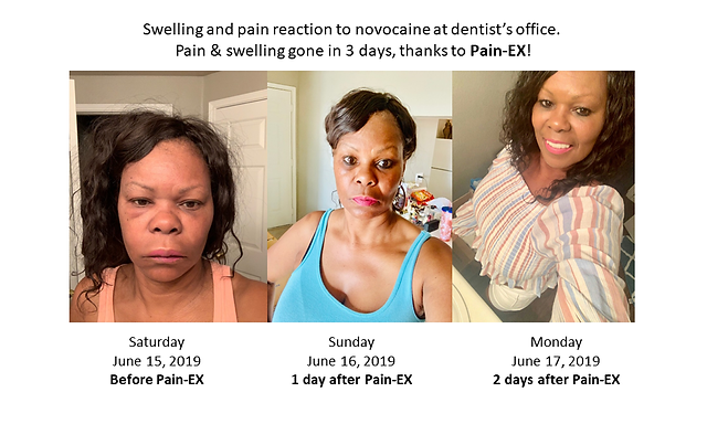 Gwens Pain-EX Photos.png