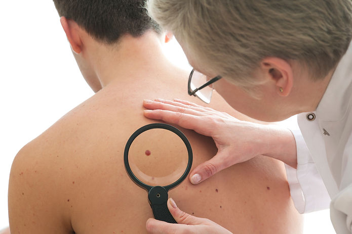 Skin Cancer Examination