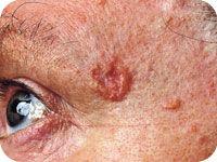 Basal Cell Carcinoma Skin Cancer