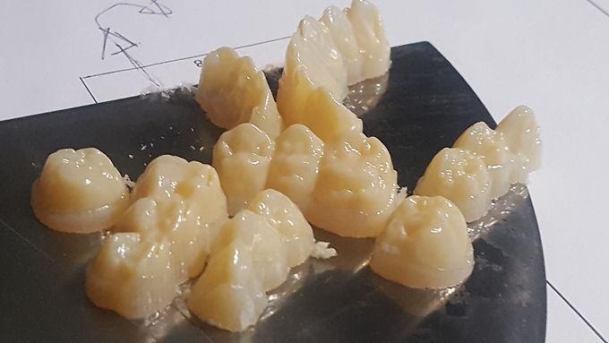 Impresion Dental 3d