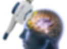 Neurostar TMS image.png