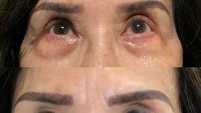 Bilateral Blepharoplasty|| Before & After ||F41