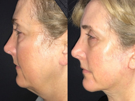 Face and Neck Lift || Before & After ||F39
