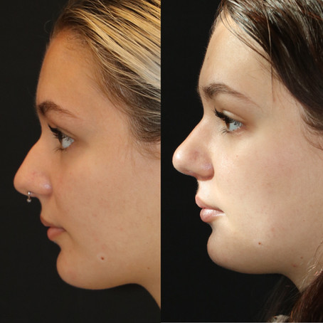 Rhinoplasty Before & After || F30