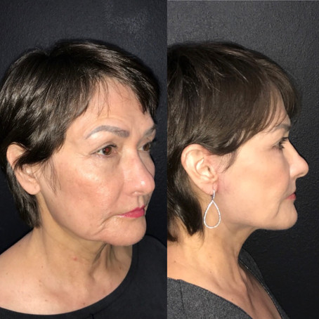 Face and Neck Lift || Before & After ||F42