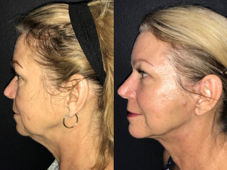 Face and Neck Lift || Before & After ||F37