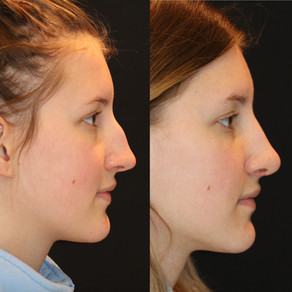 Rhinoplasty Before & After || F32