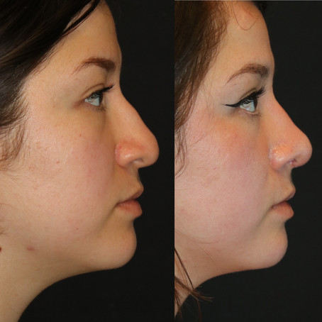 Rhinoplasty Before & After || F36            || Seattle Nose Job