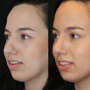 Rhinoplasty Before & After || F35            || Seattle Nose Job
