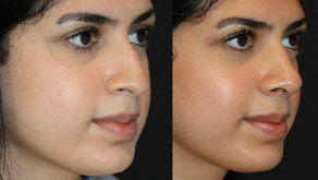 Rhinoplasty Before & After ||F43            || Seattle Nose Job
