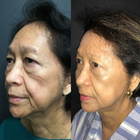 Face and Neck Lift|| Before & After      ||F40.