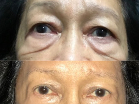 Bilateral Blepharoplasty|| Before & After ||F38
