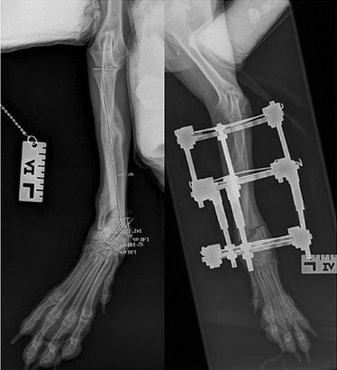 Angular limb deformity corective osteotomy