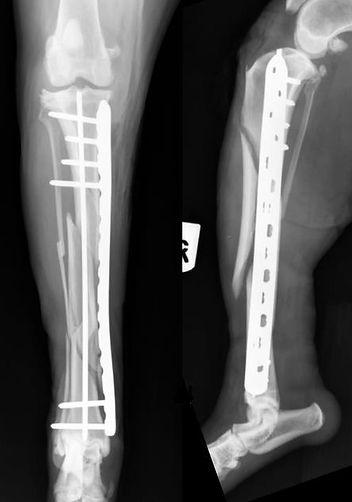 (Minimally invasive plate osteosynthesis (MIPO)