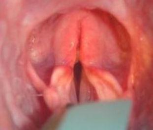 laryngeal paralysis dog
