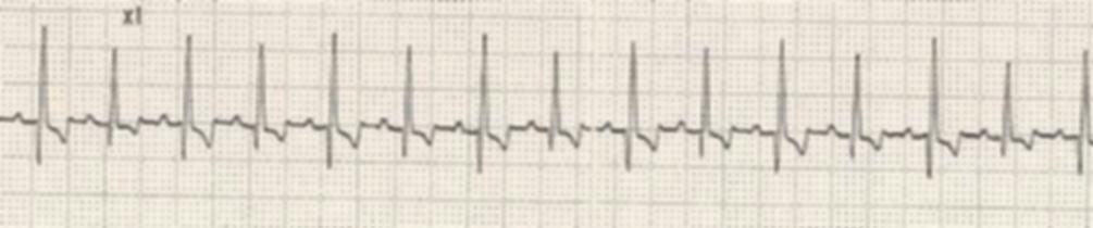 ECG alternetion