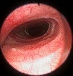 tracheal stent dog