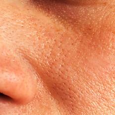 Detox Deep Pore Treatment