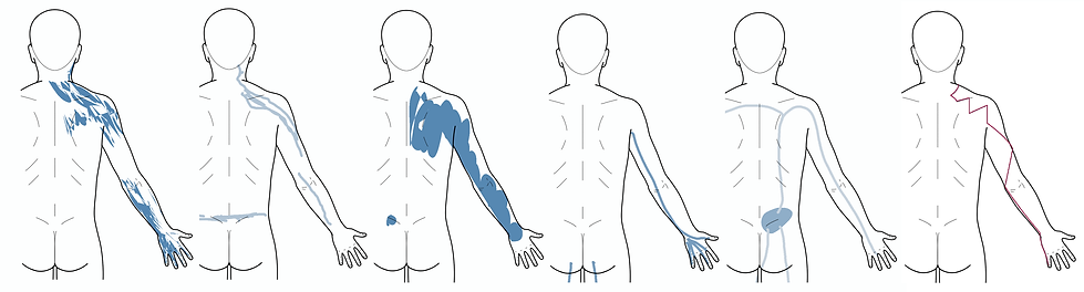 TS_back_right_arm_with_SI.png