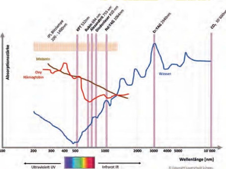 3-Wellen Lasergeräte, sinnvoll oder eher Marketing