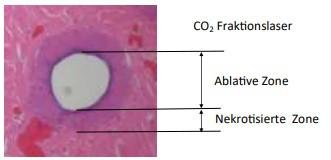 Infrarotlaser CO2 und Erbium Fraktion und Ablation