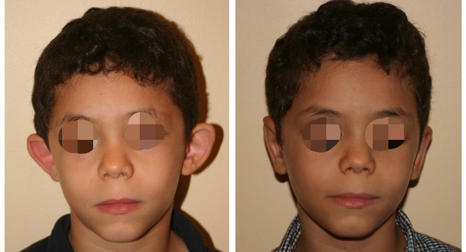 kids otoplasty.jpg