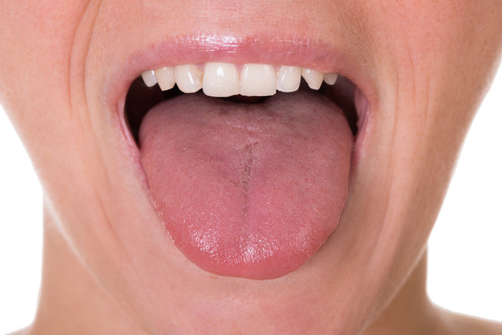5 Basic Signs from Your Tongue