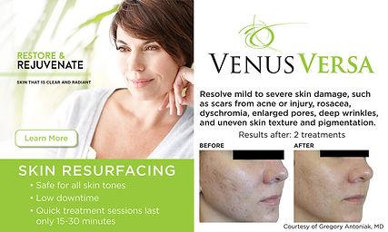 Skin Resurfacing.jpg