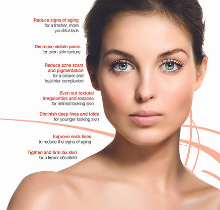 Skinsa Beauty by Kristen Evans Mt Kisco NY Skin Tightening Wrinkle Reduction