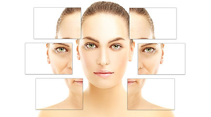 IPL Photofacial Skin Rejuvenation