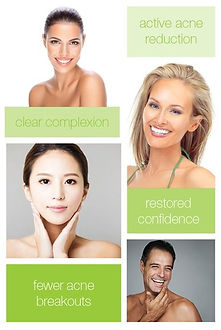 IPL Acne Treatment.jpg