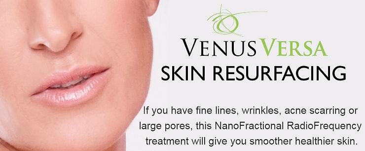 Venus-Versa-NanoFractional-RadioFrequenc